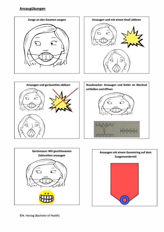 Myofunktionelle Therapie: Ansaugübungen