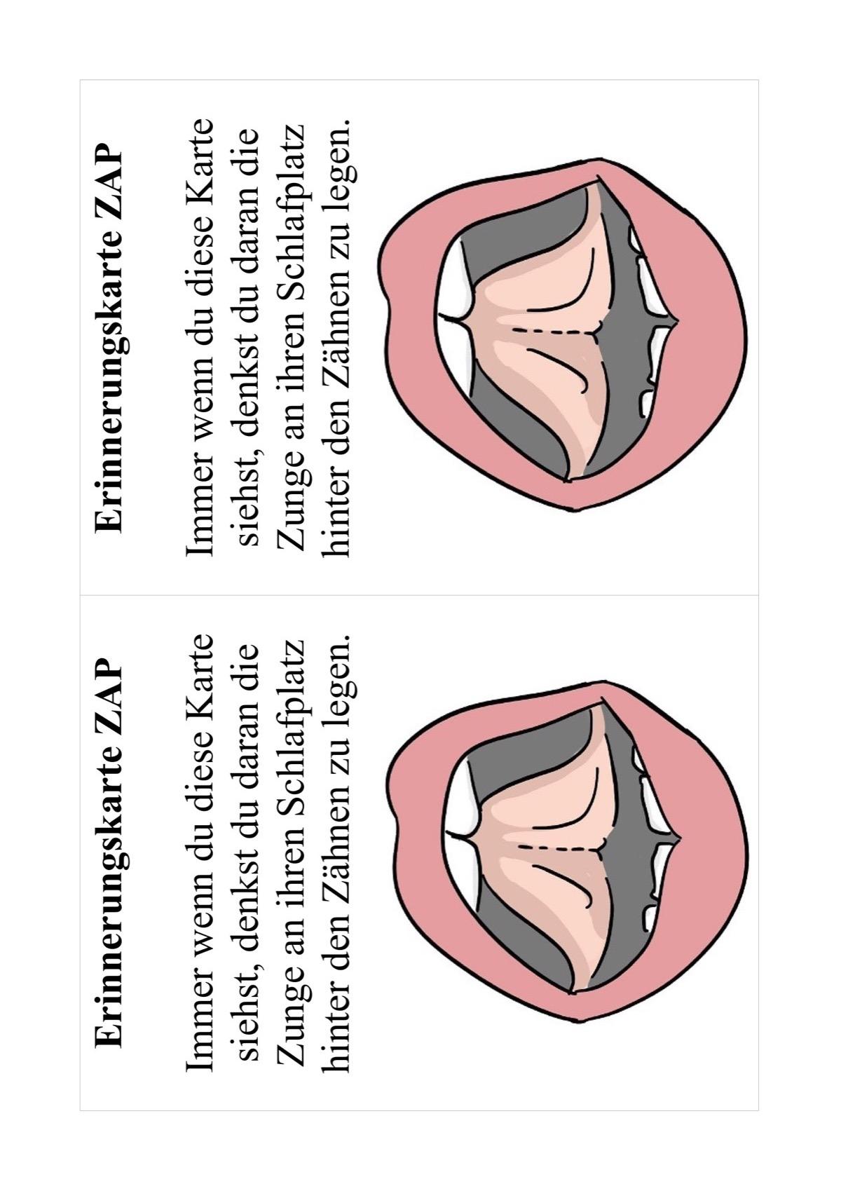 Erinnerungskarte Zungenruhelage - myofunktionelle Störung - madoo.net